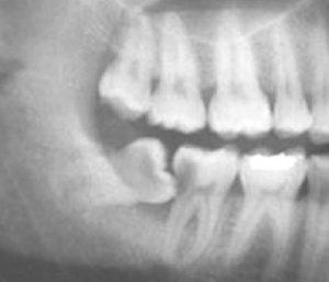 پوسیدگی دندان عقل