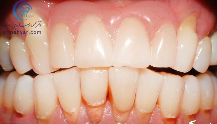 ابریژن (سایش مکانیکی دندان)