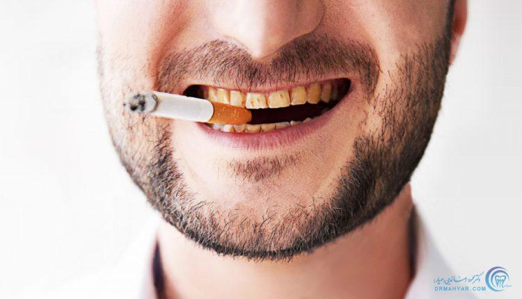 سیگار و دهان و دندان