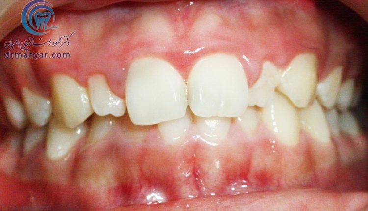 دندان (دندان های) کوچک تر از اندازه طبیعی