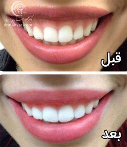 قبل و بعد - درمان بیمارانی که هنگام خندیدن لثه نمایان دارند با بکار بردن نوروتوکسین بوتاکس