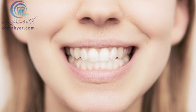 اصلاح لبخند لثه ای (لثه نمایان) با نوروتوکسین بوتاکس