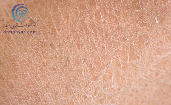 پوست خشک چه شکلیه