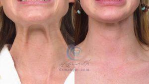 نوارهای گردنی یا نوارهای پلاتیسما