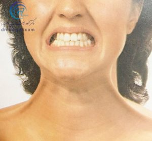 انقباض عضله پلاتیسما در پوست ناحیه طرفی گردن چین ایجاد کرده ،علاوه بر آن پوست لب تحتانی و گوشه