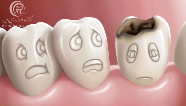 پوسیدگی دندان و چگونگی شکل گرفتن آن