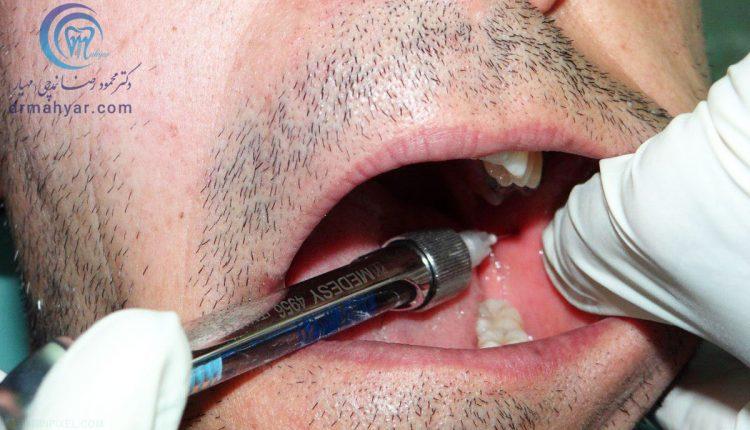 محدودیت باز کردن فک پس از تزریق دندان پزشکی
