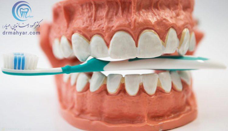 خطرات روزمره برای دندان سالم