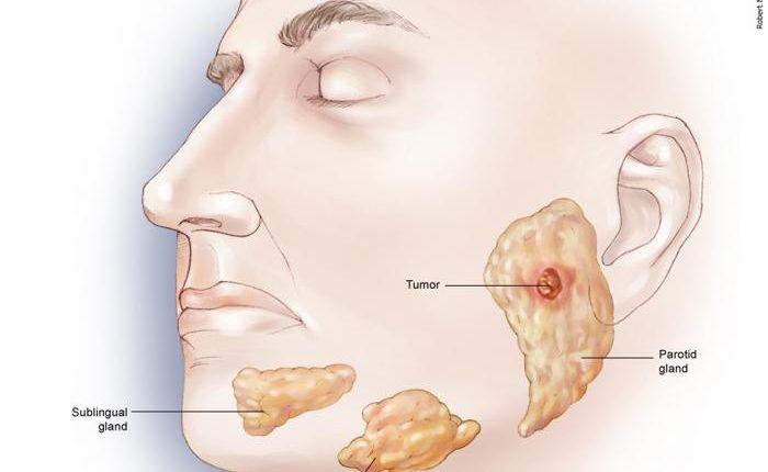 سرطان فک مرحله اول