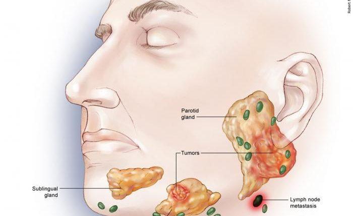 سرطان فک مرحله چهارم