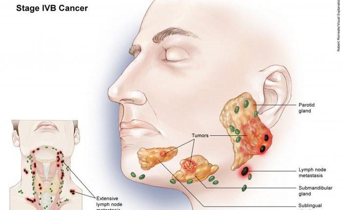 سرطان فک مرحله پنجم