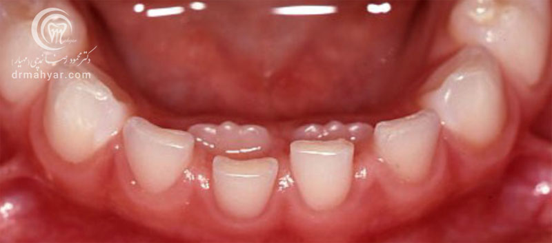 عوارض رویش نابجای دندانی