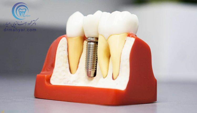 مزایای ایمپلنت فوری بلافاصله پس از کشیدن دندان