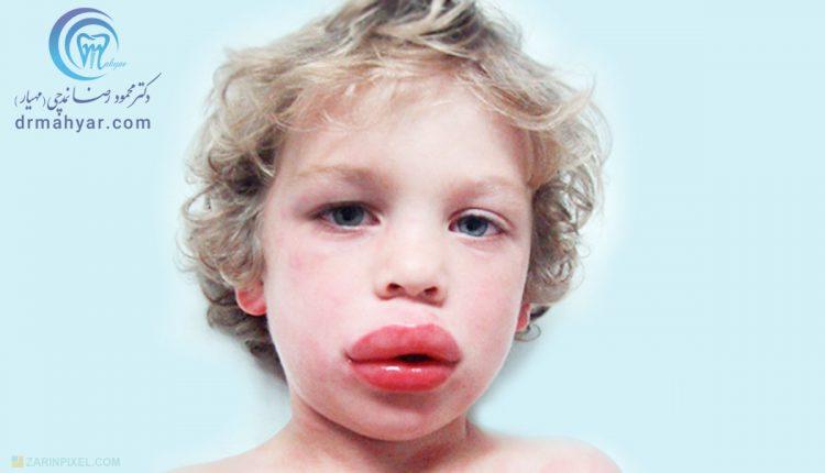 کنترل واکنش حاد الرژیک در مطب دندانپزشکی (انافیلاکسی)