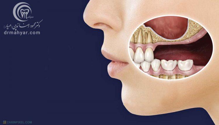 التهاب و عفونت سینوس با منشا دندانی