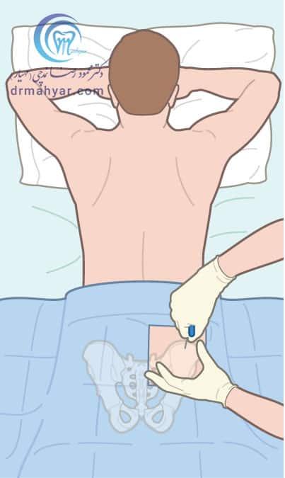 جایگزین کردن مغز استخوان معیوب با مغز استخوان طبیعی