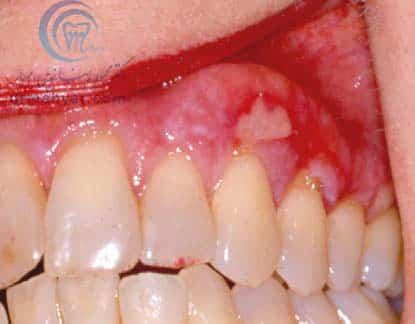 لکوپلاکی : لکه های سفید در دهان