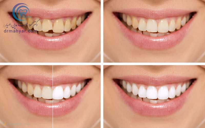 قبل و بعد باندینگ دندان