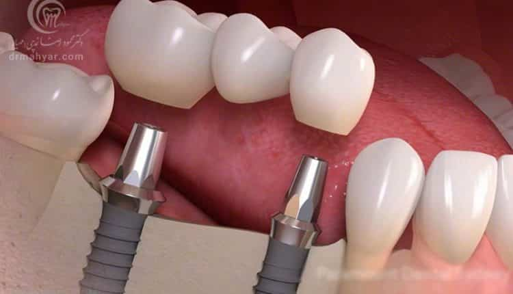 چرا باید یک دندان از دست رفته را جایگزین کنم؟