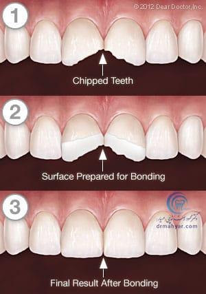 مراحل باندینگ دندانپزشکی